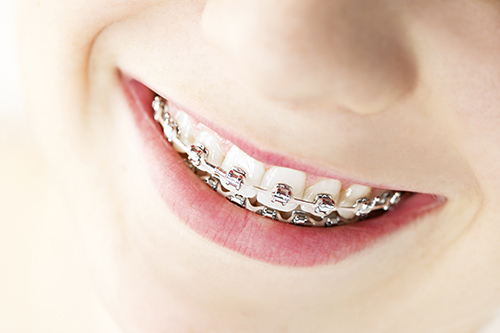 Braces in Red Bank