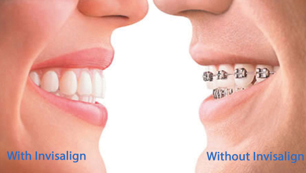 Invisalign in Red Bank
