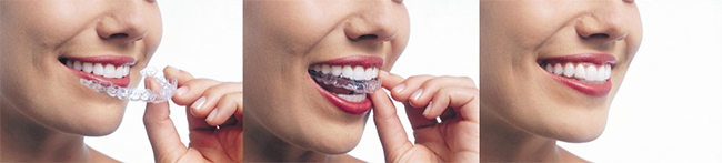 Red Bank Invisalign Dentist